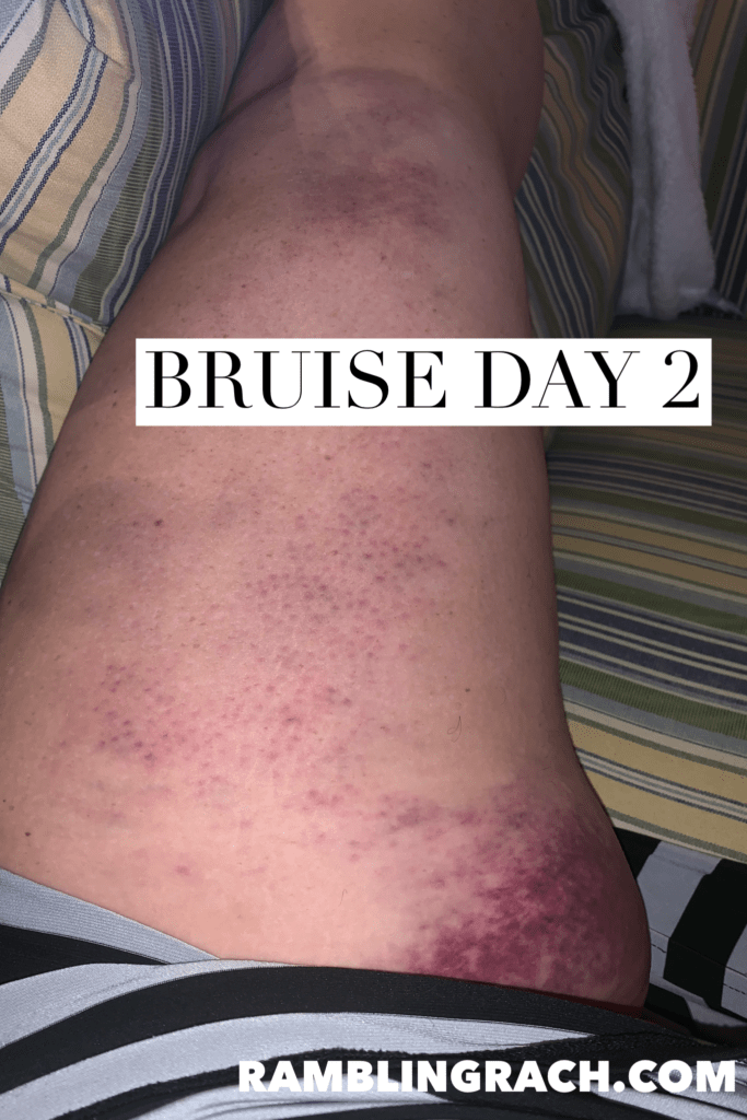 Timeline of a bruise after falling in the bathtub day 2