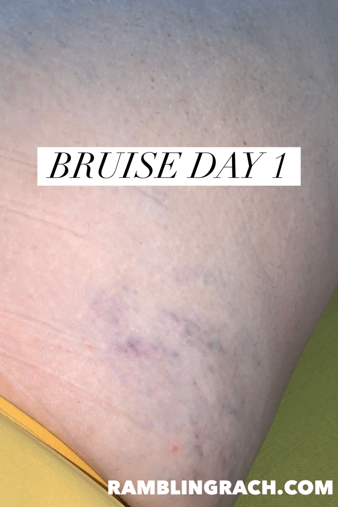 Timeline of a bruise after falling in the bathtub day 1.