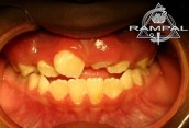 denticion mixta