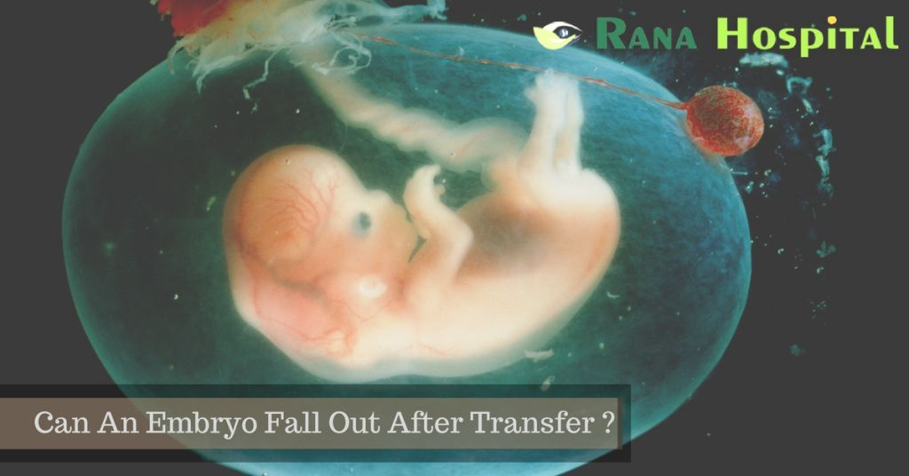 Can An Embryo Fall Out After Transfer
