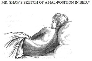 mal position in bed