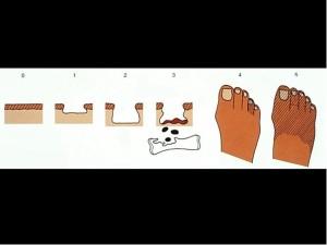 Slika 1: Meggitt – Wagnerjeva klasifikacija sprememb na diabetični nogi