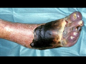 Slika 7 - Mrtvine in huda razširjena okužba stopala