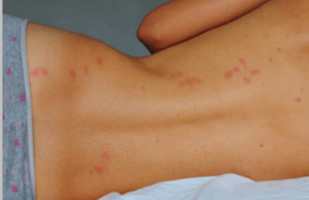 Can Bed Bugs Bite Through Clothes,