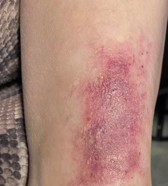 Red Rash On Lower Legs Above Ankles,