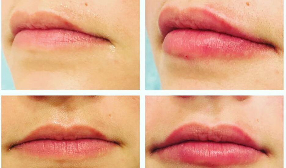 How Long Does Juvederm Last