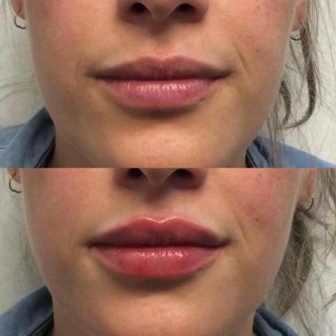 How Long Does Kybella Last,