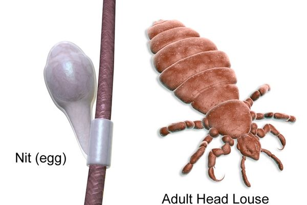 How to get rid of Head Lice?