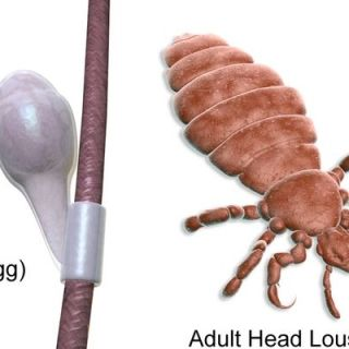 tips to ged rid of head lice