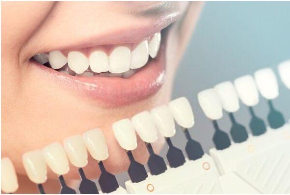 Common Cosmetic Dentistry Procedures
