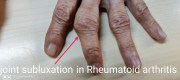 WHAT IS ARTHRITIS? KNOW ALL ABOUT IT HERE