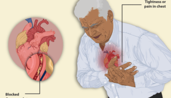 Man having chest pain of heart attack