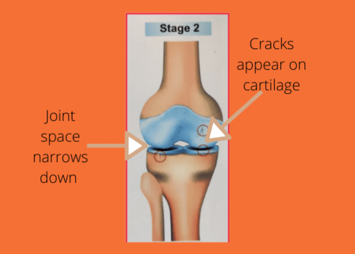 Second stage of Osteoarthritis with changes in cartilage and reduction of joint space