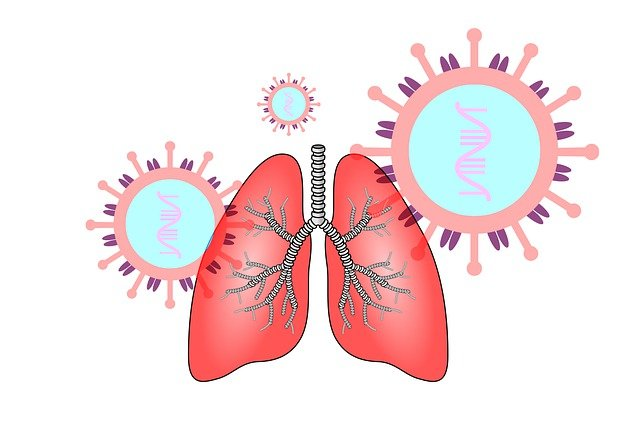 PICTURE SHOWING COVID-19 INFECTION OF LUNGS