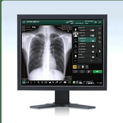 x-ray, digital x-ray, PACS, RIS, HIS, Digital x-ray software