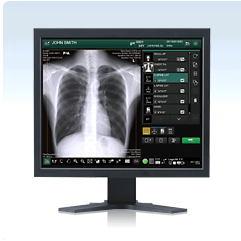 Fuji Digital X-Ray Software and Consoles