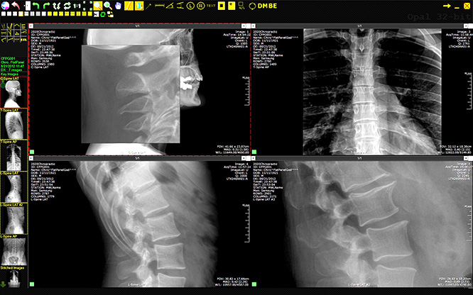 chiropractic digital x-ray system, chiropractic x-ray equipment