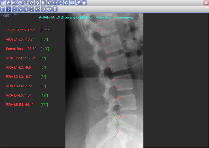 Digital x-ray software for chiropractors, PACS, DICOM, Chiropractic x-ray, x-ray