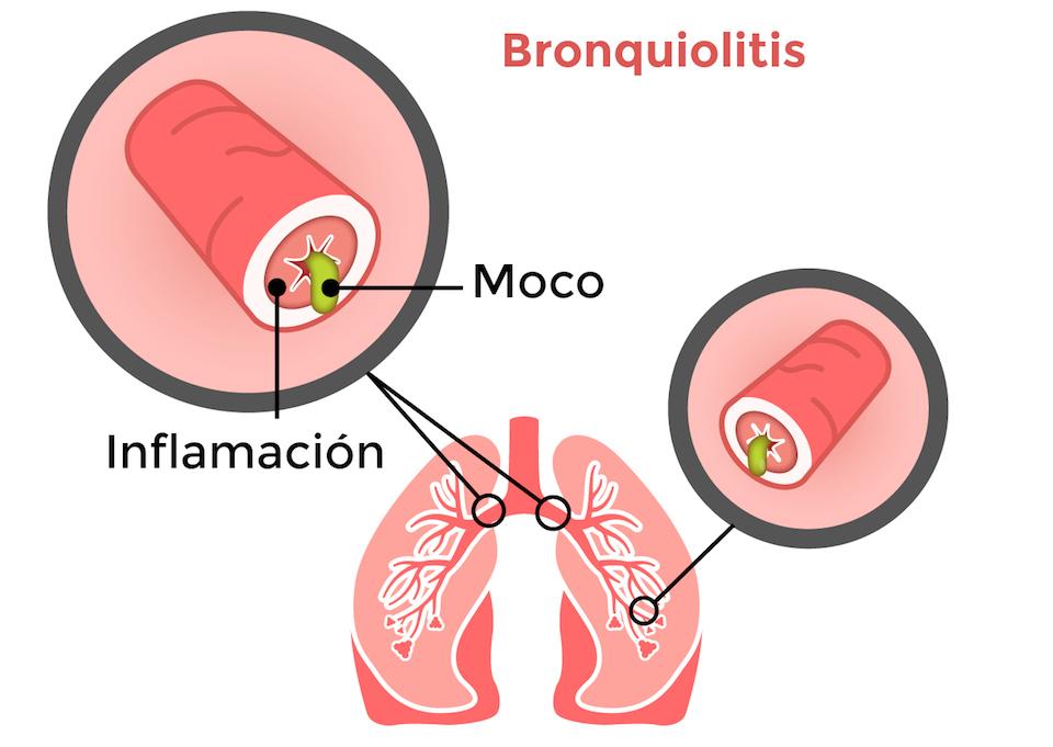 fisioterapia respiratoria en Bronquiolitis