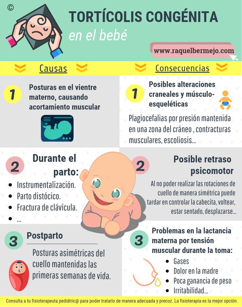 Tortícolis congénita en el bebé - Causas y consecuencias