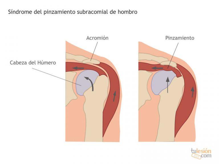 Pinzamiento del tendón por un espacio subacromial reducido