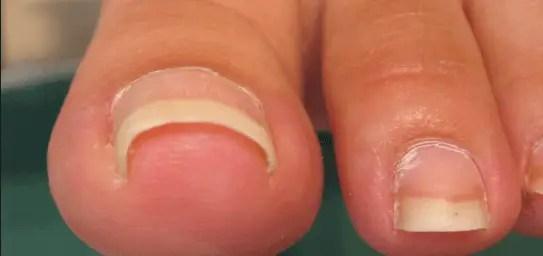 施術メニュー 巻き爪