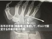 有鈎骨 骨折 ボルト 手術