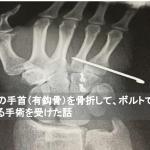 右手の手首(有鈎骨)を骨折して、ボルトで固定する手術を受けた話
