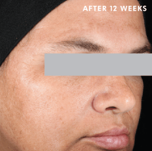 Discoloration-Defense-After-Image-SkinCeuticals