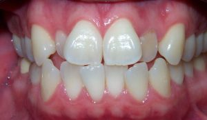 before image of comprehensive ortho case