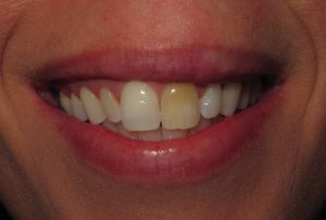 Image of tooth before whitening