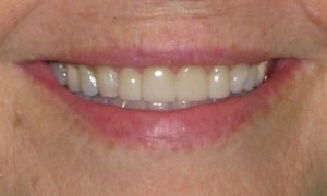 image of patient after treatment with porcelain veneers