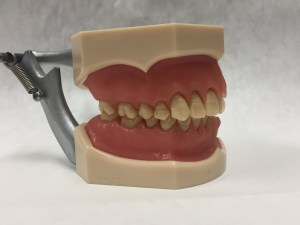 image of dental model with healthy teeth and gums