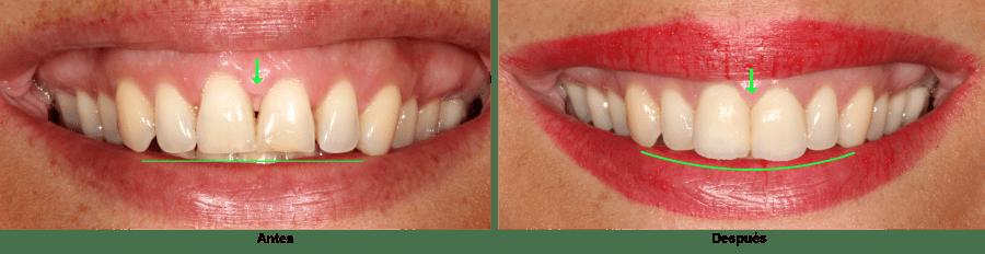 Papila dental. Antes y después