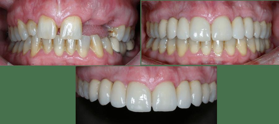 protesis-dientes-naturales-02