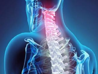 حل العلاج الطبيعي لمشاكل الفتق