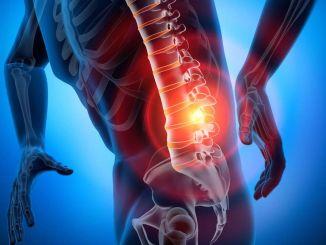 bel fitigi nedir nedenleri belirtileri ve tedavi yontemleri nelerdir