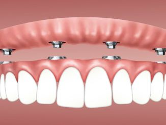 Are dental implants right for you