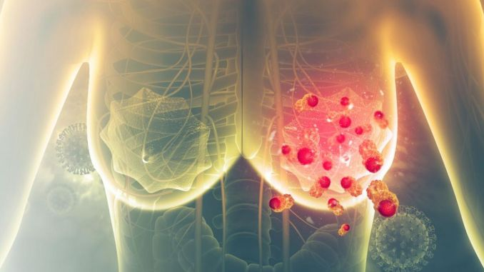 vital advice for breast cancer patients in the coronavirus process