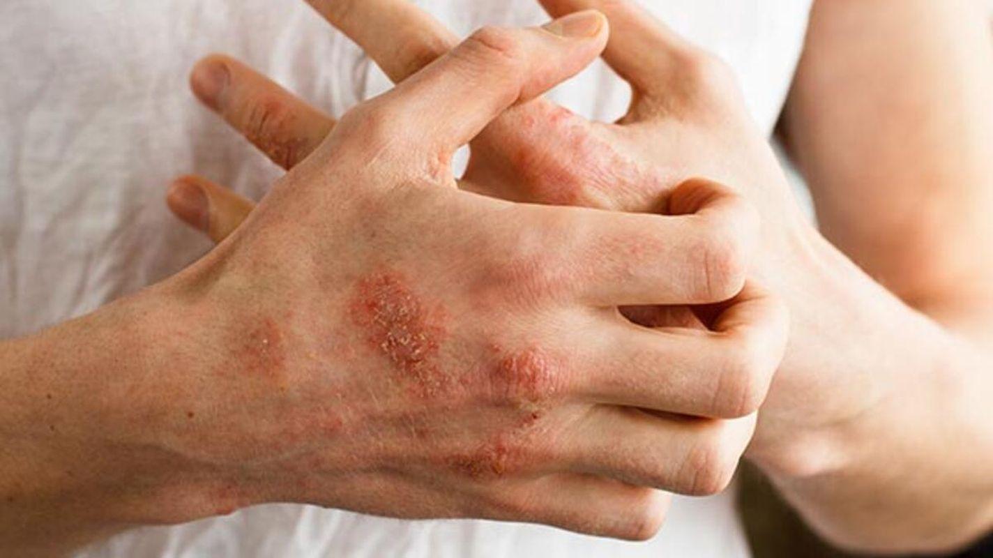 poate eczema cauza pierderii în greutate
