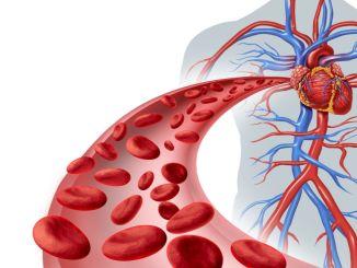 memperhatikan faktor risiko penyakit kardiovaskular