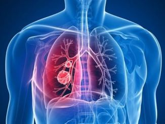 TB can be confused with lung cancer