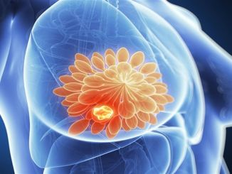 There are hundreds of positive developments in breast cancer treatment