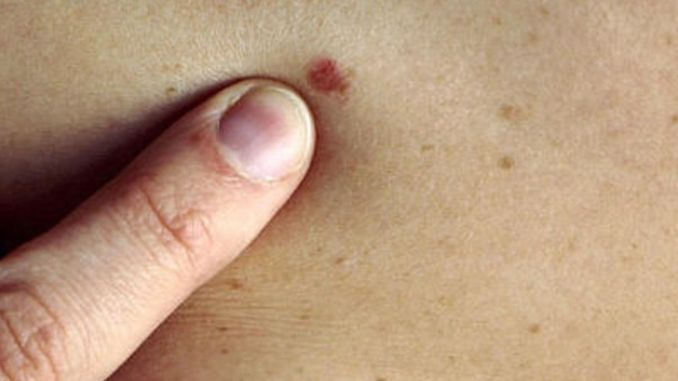 attention to skin tumors