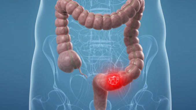pandemic prevents early diagnosis in colon cancer
