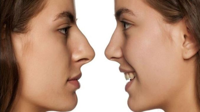 pay attention to breathing problems after rhinoplasty
