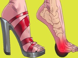 The dangers of wearing high heels everyday