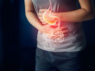 Screening age has decreased in large bowel cancer