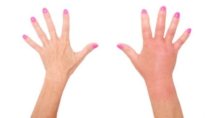 ways to get rid of edema