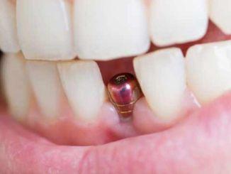 Ang tagal ng paggamit ng implant ng ngipin ay nakikipagkumpitensya sa buhay ng tao